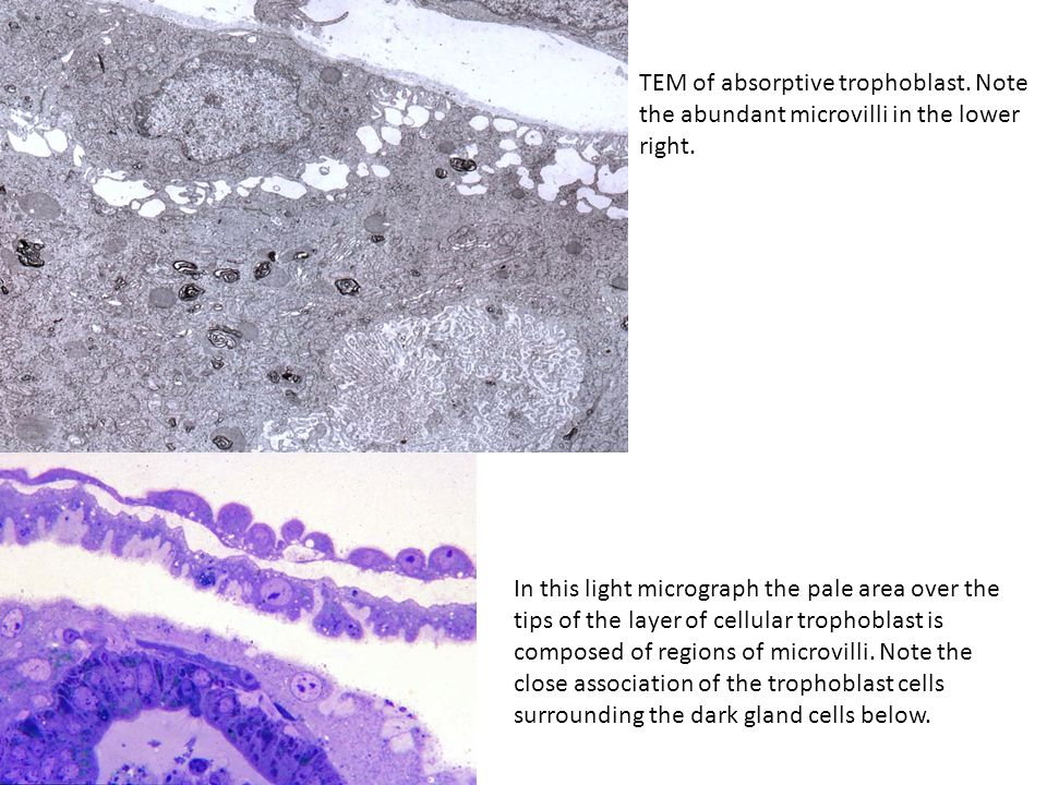 TEM of absorptive trophoblast. Note the abundant microvilli in the lower right. In this light micrograph the pale area over the tips of the layer of c