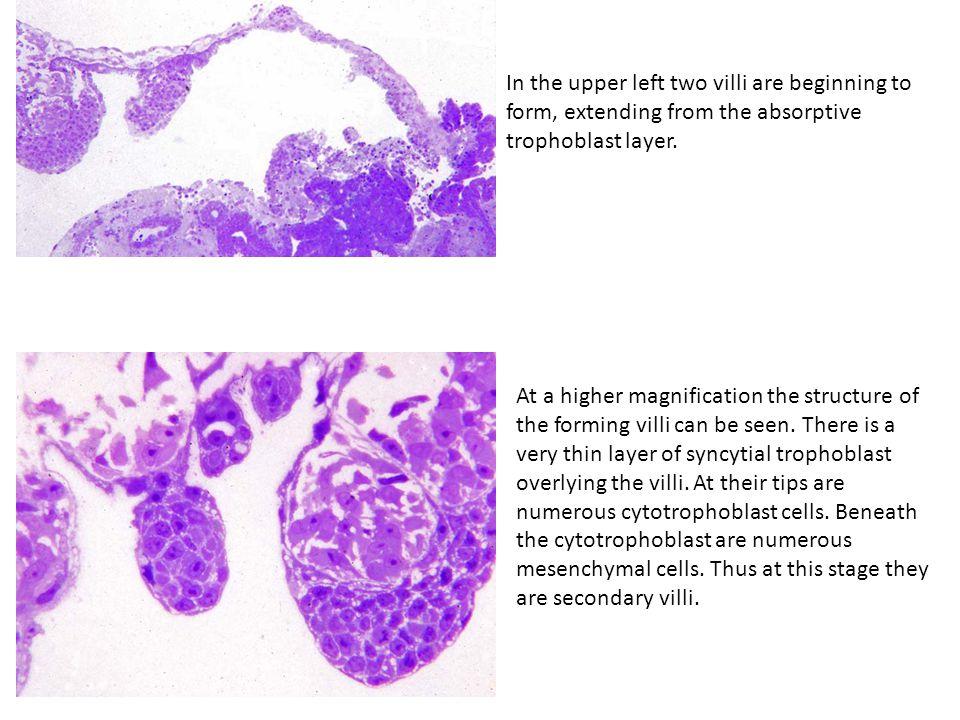 "Presentation ""Implantation in the nine-banded armadillo Allen C ..."