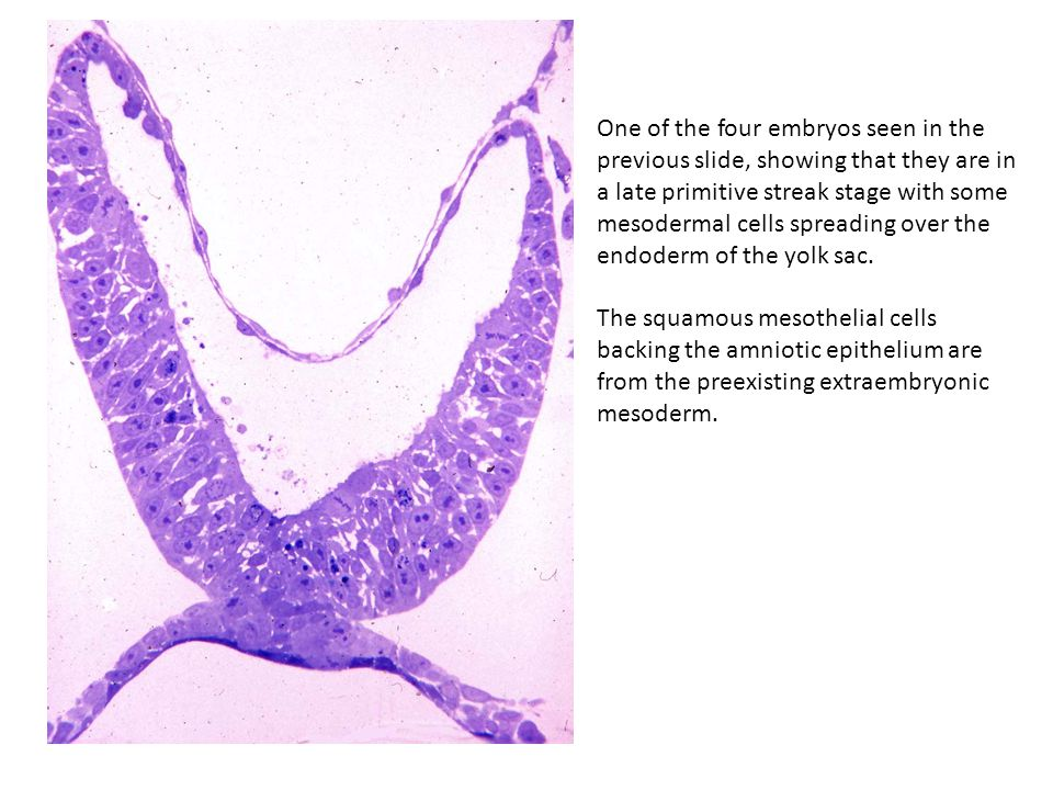 One of the four embryos seen in the previous slide, showing that they are in a late primitive streak stage with some mesodermal cells spreading over t