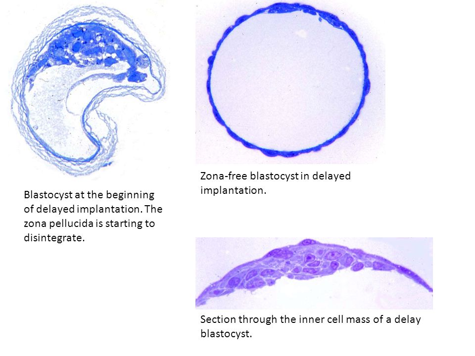 Blastocyst at the beginning of delayed implantation. The zona pellucida is starting to disintegrate. Zona-free blastocyst in delayed implantation. Sec