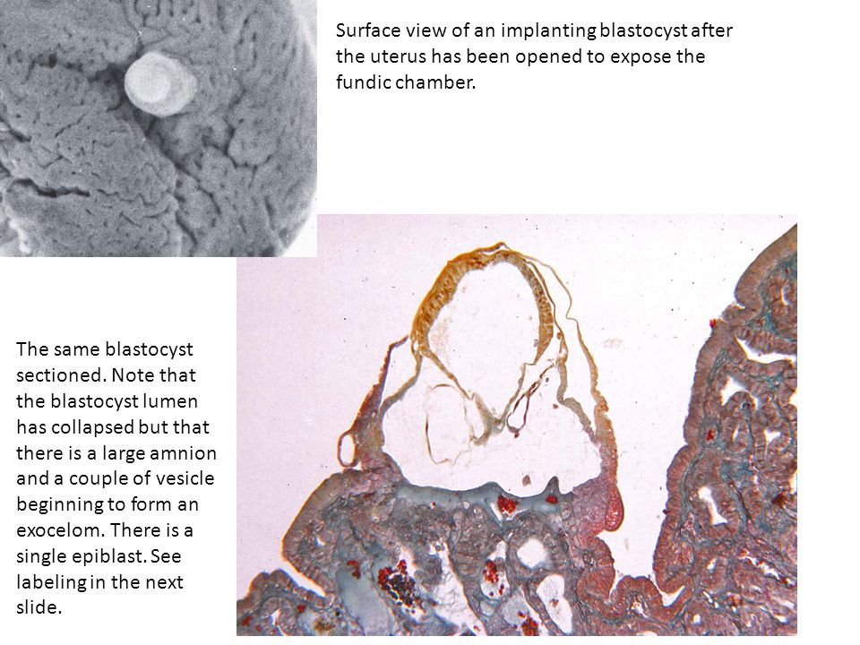 Surface view of an implanting blastocyst after the uterus has been opened to expose the fundic chamber. The same blastocyst sectioned. Note that the b