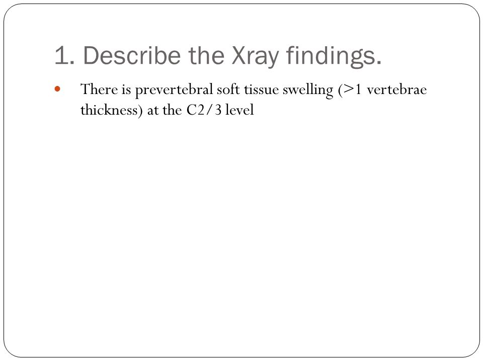 1. Describe the Xray findings. There is prevertebral soft tissue swelling (>1 vertebrae thickness) at the C2/3 level