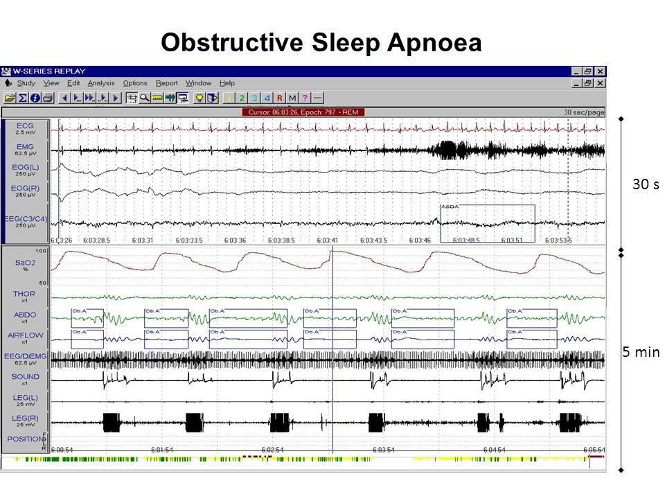 Obstructive Sleep Apnoea 30 s 5 min