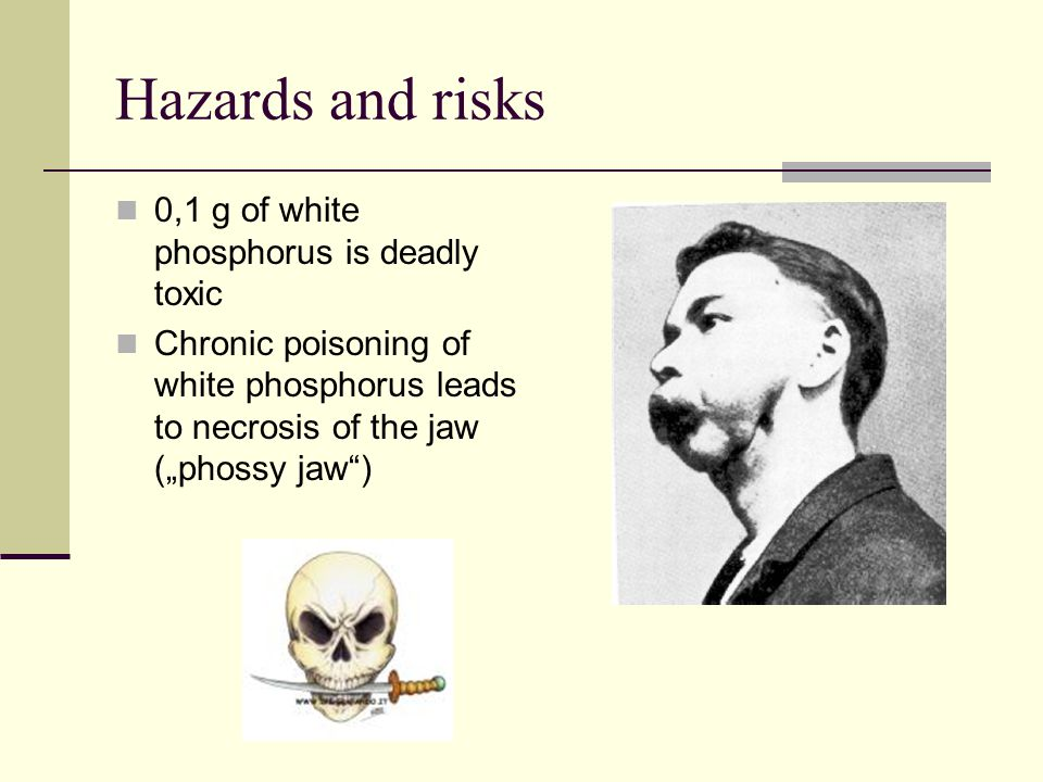 "Hazards and risks 0,1 g of white phosphorus is deadly toxic Chronic poisoning of white phosphorus leads to necrosis of the jaw (""phossy jaw"")"