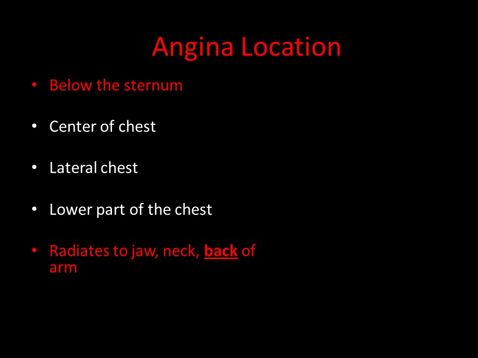 Angina Location Below the sternum Center of chest Lateral chest Lower part of the chest Radiates to jaw, neck, back of arm VAGUE