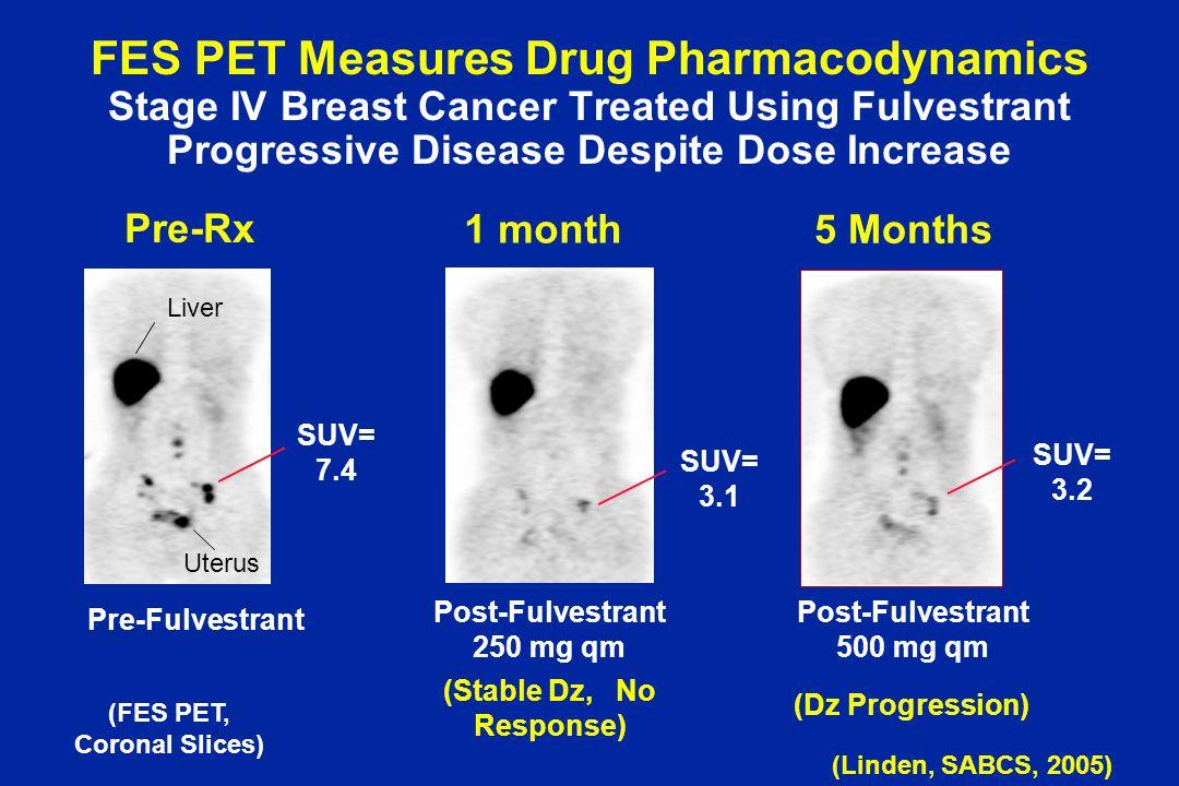 FES PET Measures Drug Pharmacodynamics Stage IV Breast Cancer Treated Using Fulvestrant Progressive Disease Despite Dose Increase SUV= 7.4 Pre-Fulvest