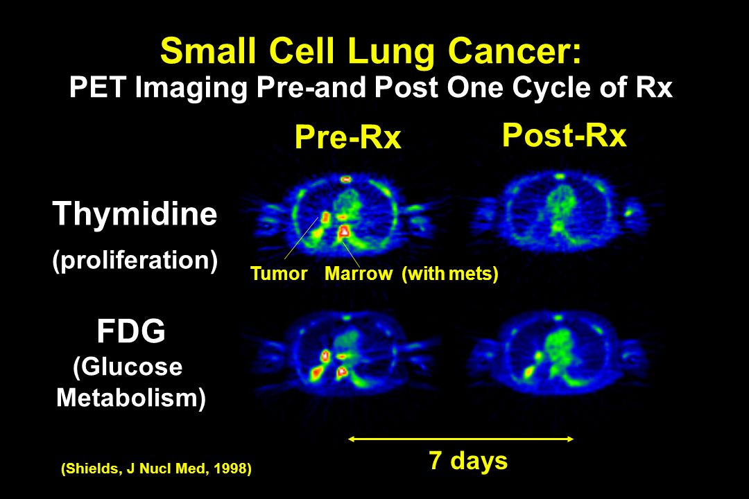 FDG (Glucose Metabolism) Thymidine (proliferation) Marrow (with mets) Post-Rx Pre-Rx Tumor Small Cell Lung Cancer: PET Imaging Pre-and Post One Cycle of Rx 7 days (Shields, J Nucl Med, 1998)