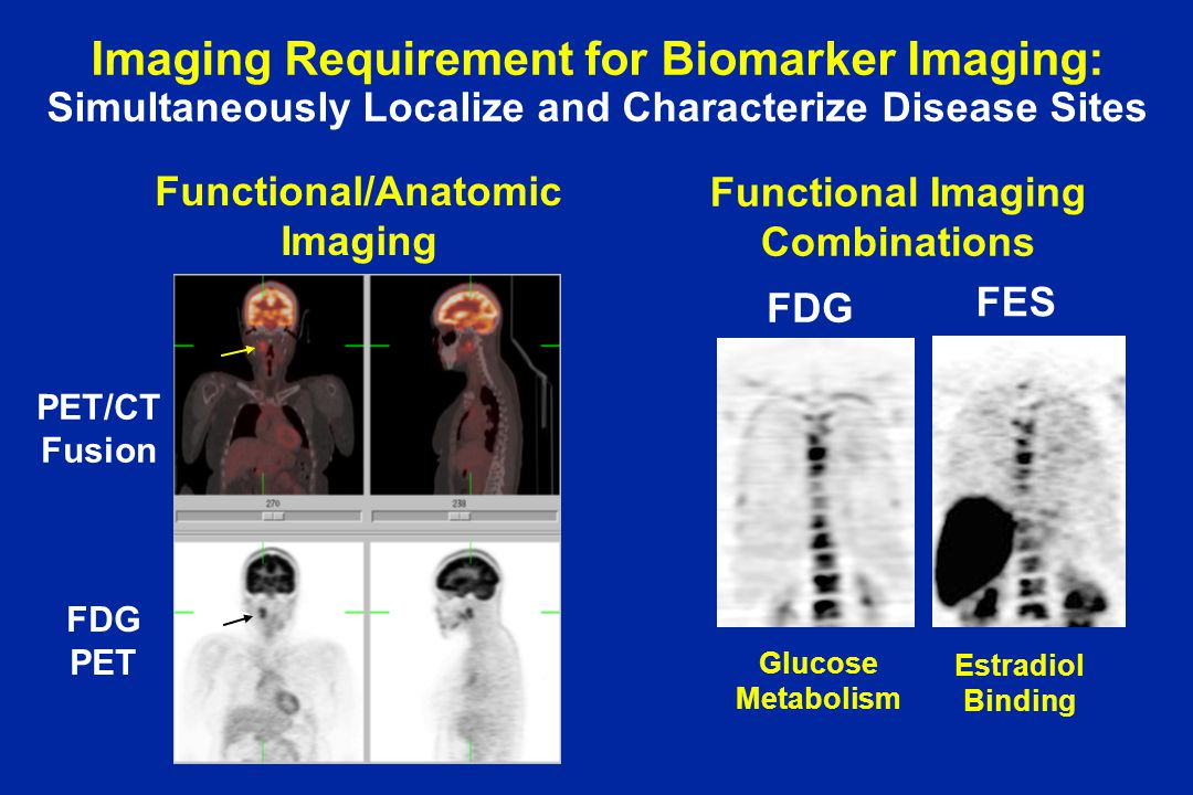 Imaging Requirement for Biomarker Imaging: Simultaneously Localize and Characterize Disease Sites FDG PET PET/CT Fusion FES FDG Glucose Metabolism Estradiol Binding Functional/Anatomic Imaging Functional Imaging Combinations