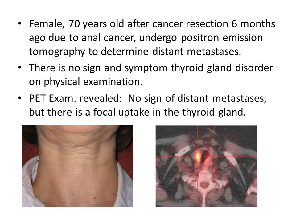 Female, 70 years old after cancer resection 6 months ago due to anal cancer, undergo positron emission tomography to determine distant metastases. The