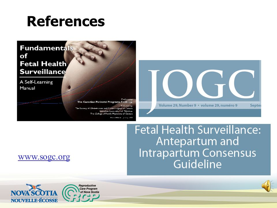 Fetal Health Surveillance (FHS): Part 3 – Antepartum Maternal Newborn Orientation Learning Module Reproductive Care Program of Nova Scotia, 2013 *FHS: