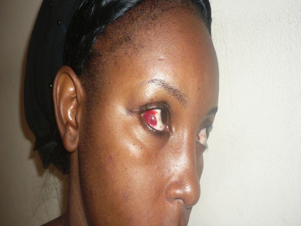 Asanteni sana.Susan Masanja. Women Harm Reduction International Network.