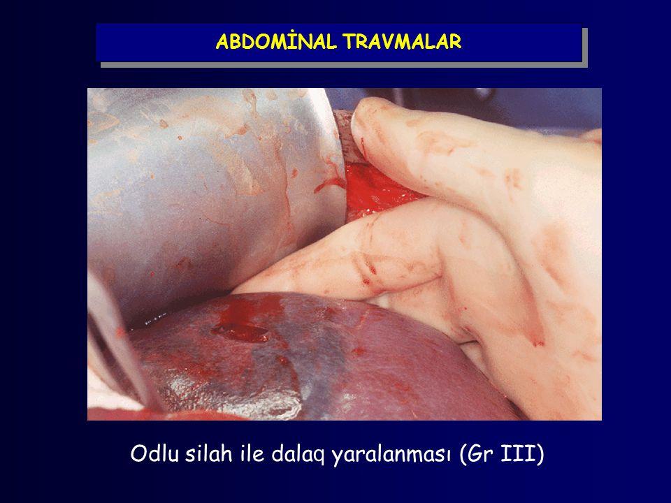 ABDOMİNAL TRAVMALAR Odlu silah ile dala q yaralanması (Gr III)