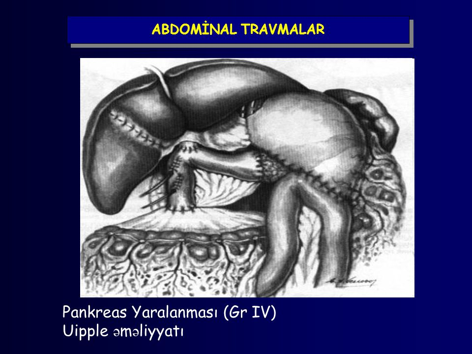 ABDOMİNAL TRAVMALAR Pankreas Yaralanması (Gr IV) Uipple ə m ə liyyatı