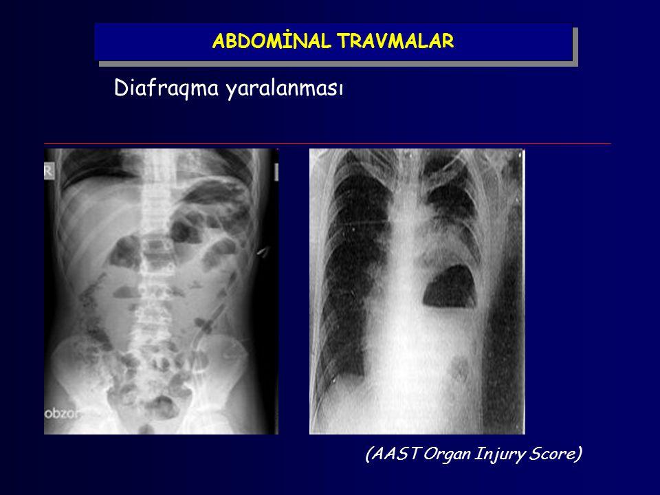 ABDOMİNAL TRAVMALAR Diafraqma yaralanması (AAST Organ Injury Score)