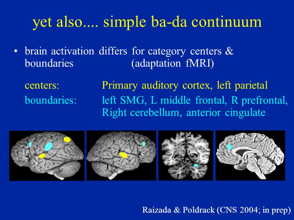 Brain activation for category boundaries: Ganong effect Myers & Blumstein (CNS 2005) STG is sensitive to change in category boundary due to lexical status: gift-kift; giss-kiss Conclusion: lexical knowledge influences basic phonetic categorization processes