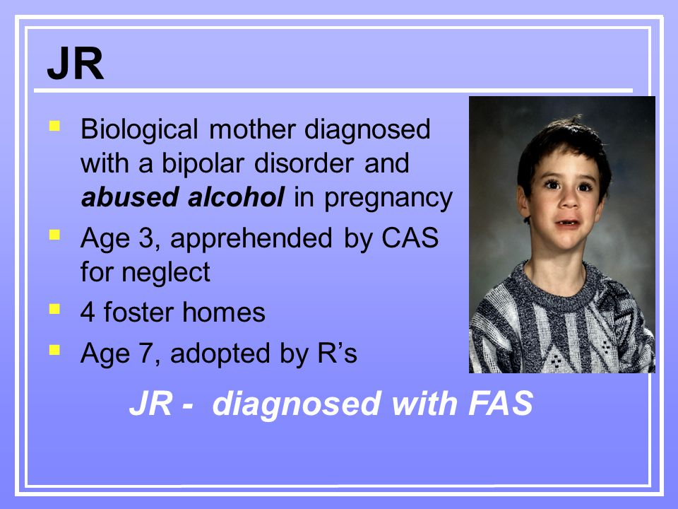  Biological mother diagnosed with a bipolar disorder and abused alcohol in pregnancy  Age 3, apprehended by CAS for neglect  4 foster homes  Age 7, adopted by R's JR JR - diagnosed with FAS