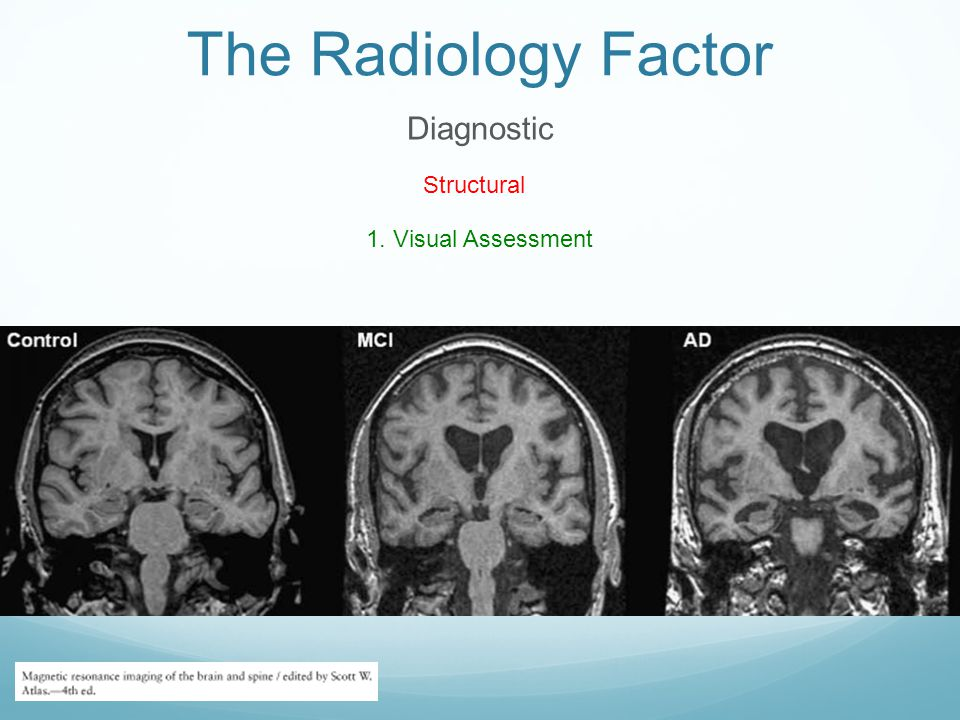The Radiology Factor Diagnostic Structural 1. Visual Assessment