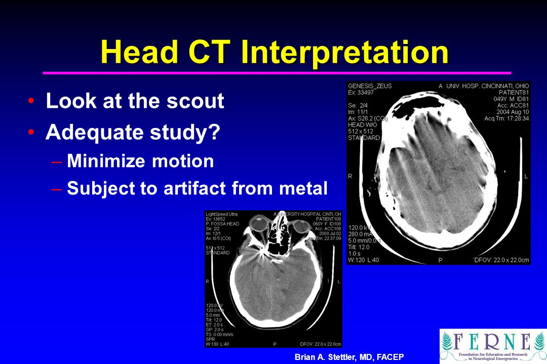 Brian A. Stettler, MD, FACEP Head CT Interpretation Look at the scout Adequate study? –Minimize motion –Subject to artifact from metal