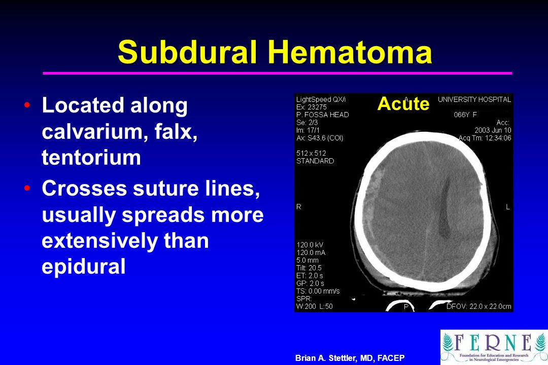 Brian A. Stettler, MD, FACEP Subdural Hematoma Located along calvarium, falx, tentorium Crosses suture lines, usually spreads more extensively than ep