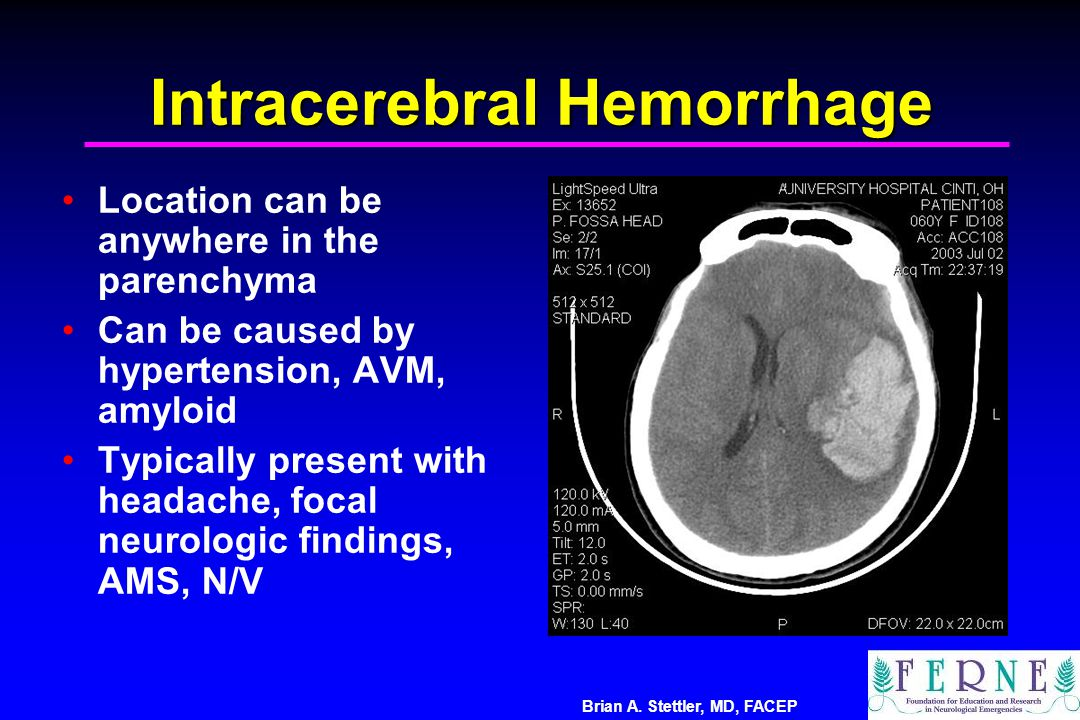 Brian A. Stettler, MD, FACEP Intracerebral Hemorrhage Location can be anywhere in the parenchyma Can be caused by hypertension, AVM, amyloid Typically