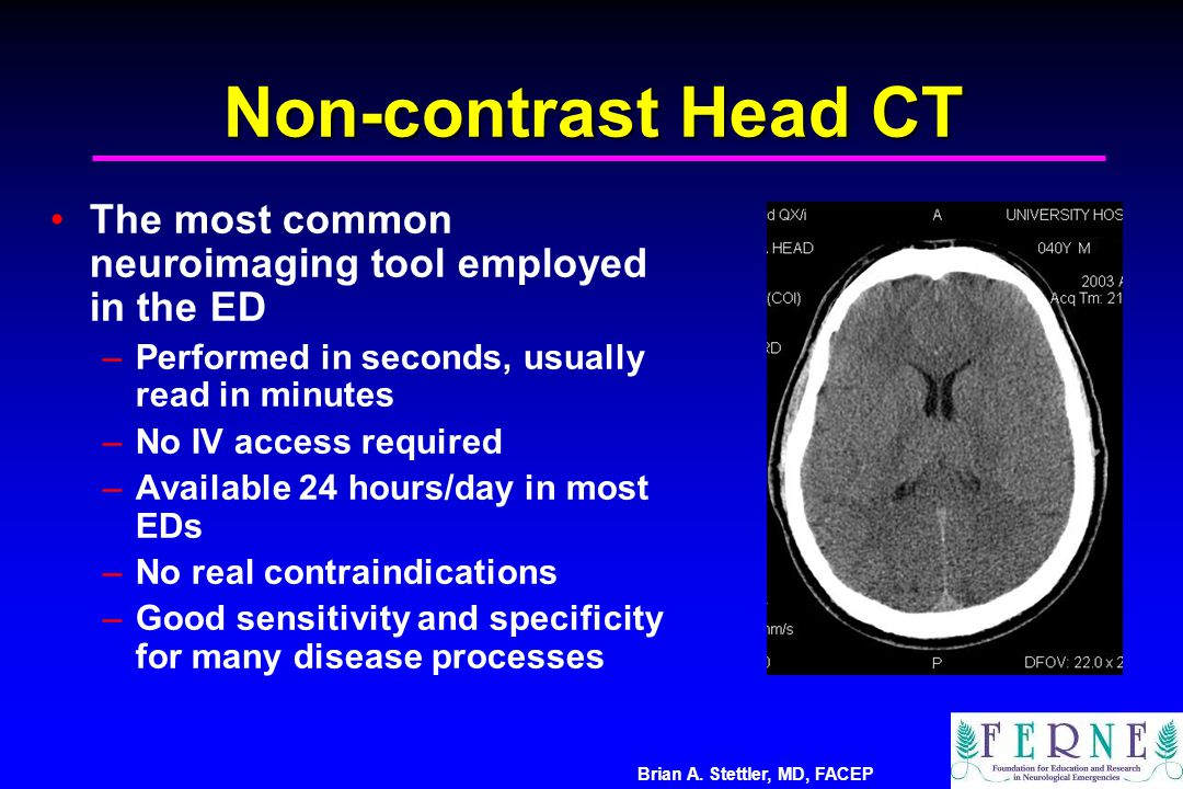 Brian A. Stettler, MD, FACEP Non-contrast Head CT The most common neuroimaging tool employed in the ED –Performed in seconds, usually read in minutes