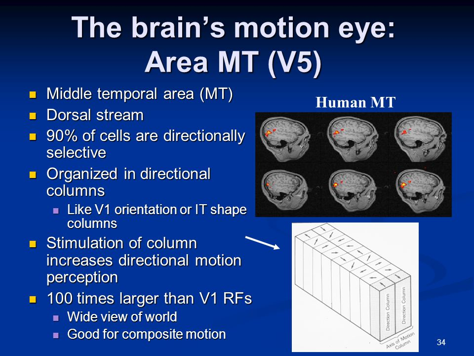 34 The brain's motion eye: Area MT (V5) Middle temporal area (MT) Middle temporal area (MT) Dorsal stream Dorsal stream 90% of cells are directionally selective 90% of cells are directionally selective Organized in directional columns Organized in directional columns Like V1 orientation or IT shape columns Like V1 orientation or IT shape columns Stimulation of column increases directional motion perception Stimulation of column increases directional motion perception 100 times larger than V1 RFs 100 times larger than V1 RFs Wide view of world Wide view of world Good for composite motion Good for composite motion Human MT