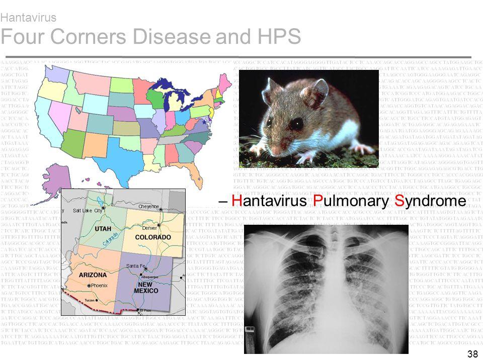 38 Hantavirus Four Corners Disease and HPS –Hantavirus Pulmonary Syndrome