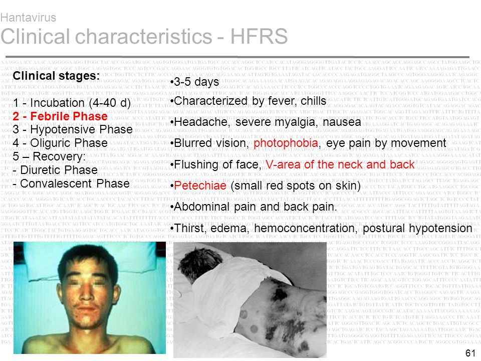 61 Hantavirus Clinical characteristics - HFRS 3-5 days Characterized by fever, chills Headache, severe myalgia, nausea Blurred vision, photophobia, eye pain by movement Flushing of face, V-area of the neck and back Petechiae (small red spots on skin) Abdominal pain and back pain.