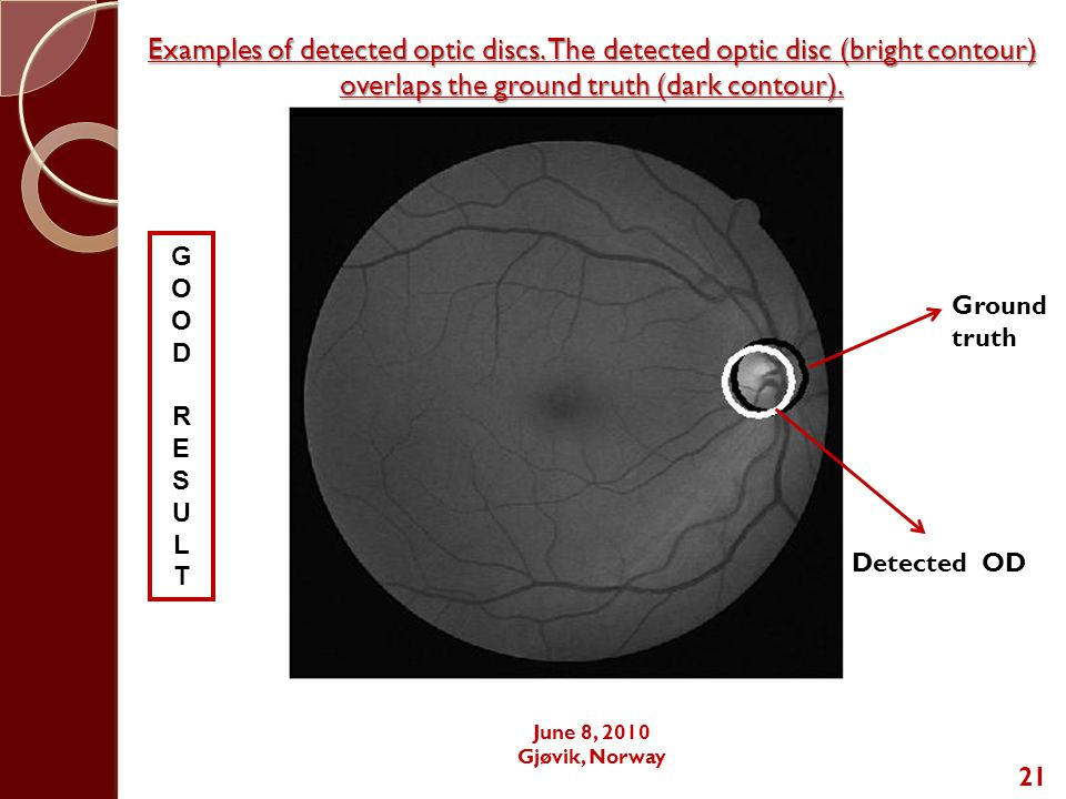 21 GOODRESULTGOODRESULT Ground truth Detected OD Examples of detected optic discs.