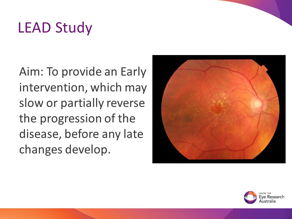 LEAD Study Aim: To provide an Early intervention, which may slow or partially reverse the progression of the disease, before any late changes develop.