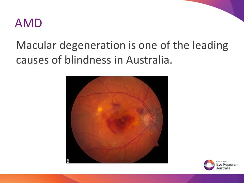 LEAD STUDY With positive results from the Pilot study, we received an NHMRC grant to conduct the worlds first multi centred randomised control trial of nanosecond laser in the treatment of early AMD.