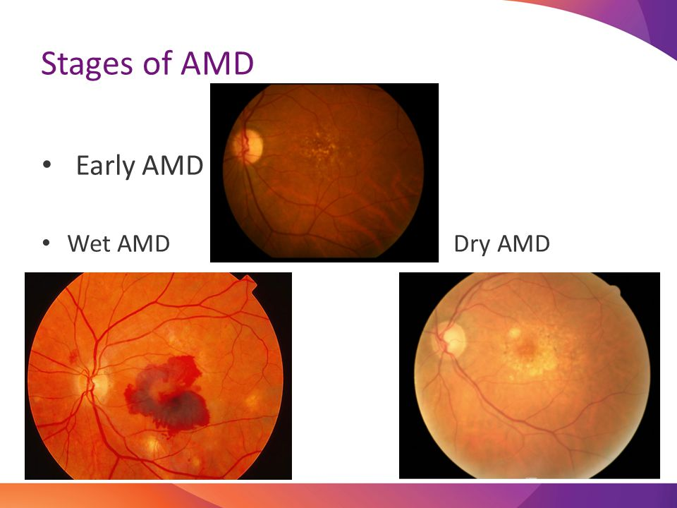 Currently there is only treatment for WET macular degeneration. Lucentis Eylea Treatment
