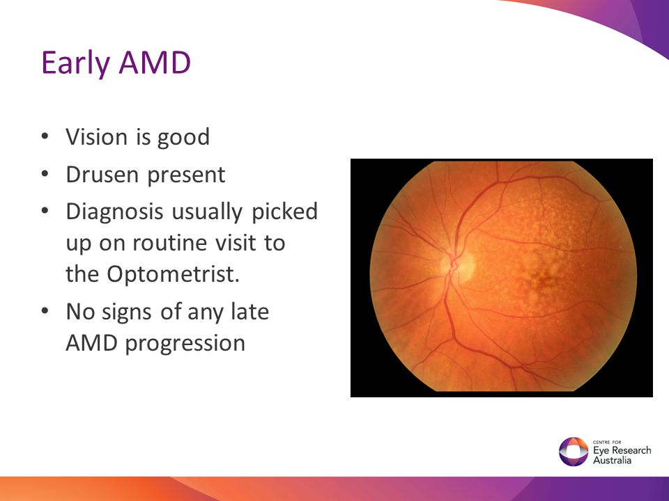 Early AMD Vision is good Drusen present Diagnosis usually picked up on routine visit to the Optometrist. No signs of any late AMD progression