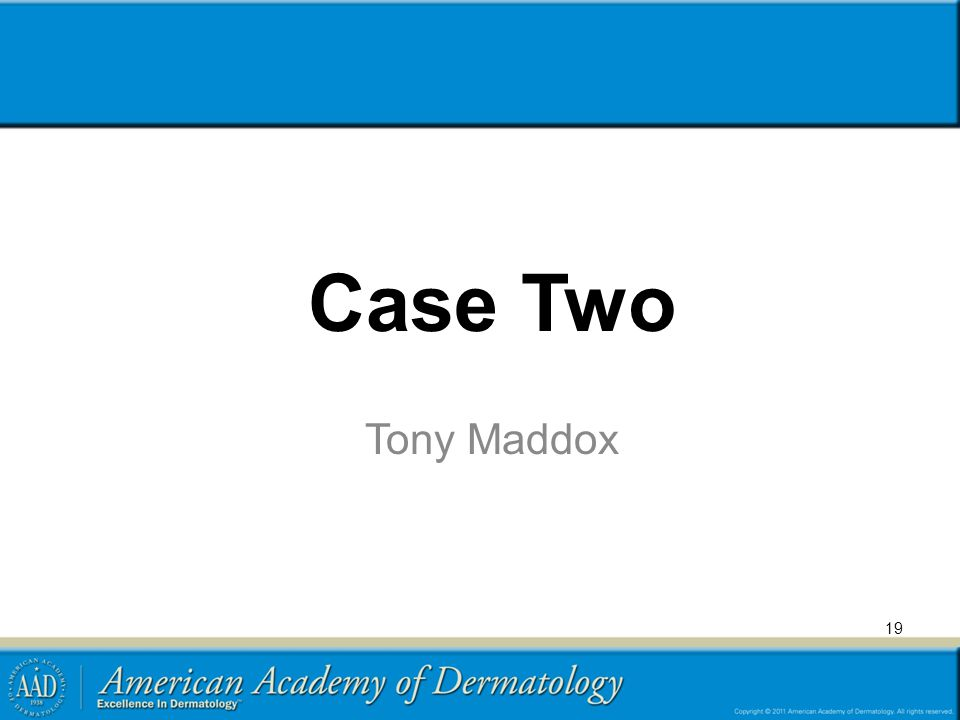 19 Case Two Tony Maddox