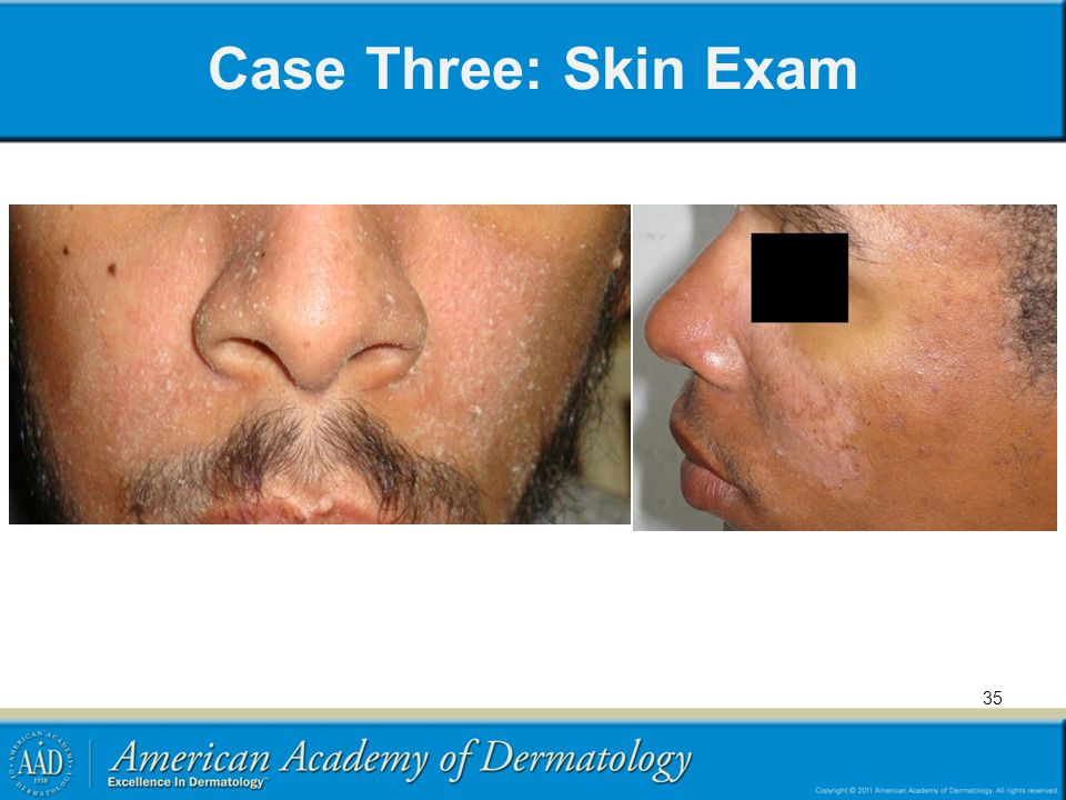 Case Three: Skin Exam 35