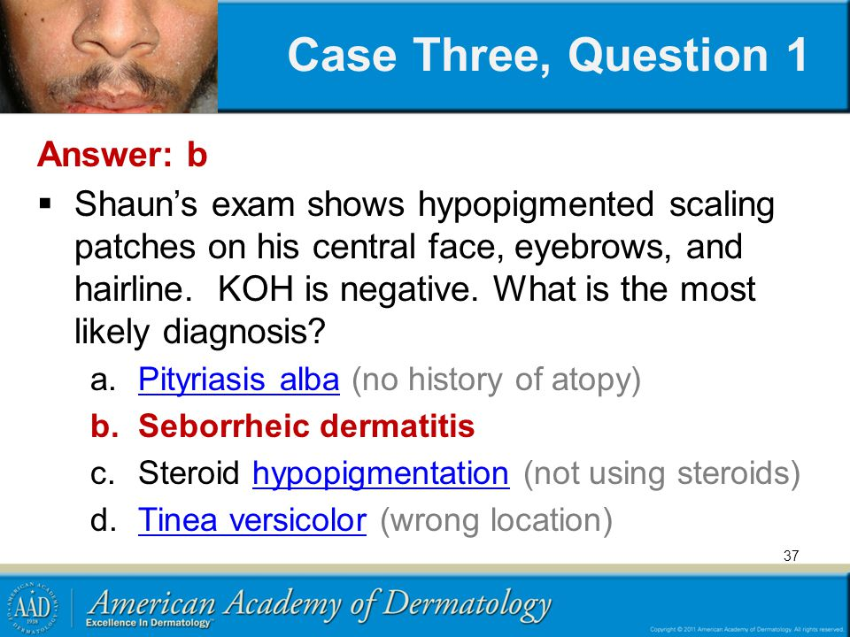 37 Answer: b  Shaun's exam shows hypopigmented scaling patches on his central face, eyebrows, and hairline.