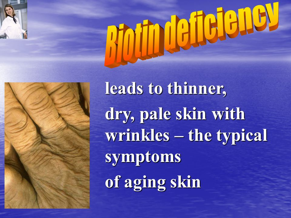 leads to thinner, dry, pale skin with wrinkles – the typical symptoms of aging skin