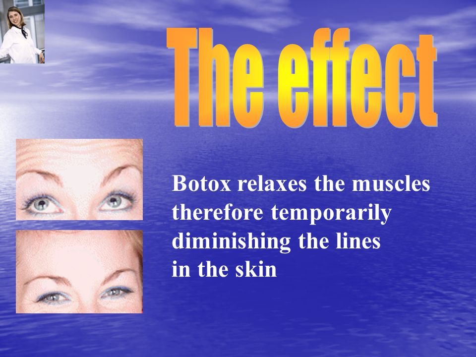 Botox relaxes the muscles therefore temporarily diminishing the lines in the skin