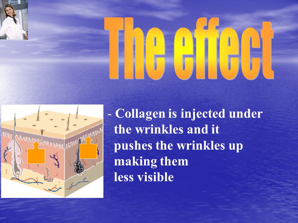 - Collagen is injected under the wrinkles and it pushes the wrinkles up making them less visible