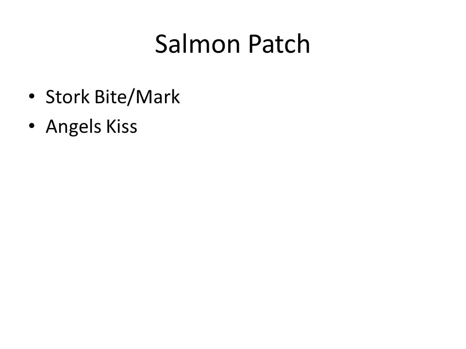 Salmon Patch Stork Bite/Mark Angels Kiss