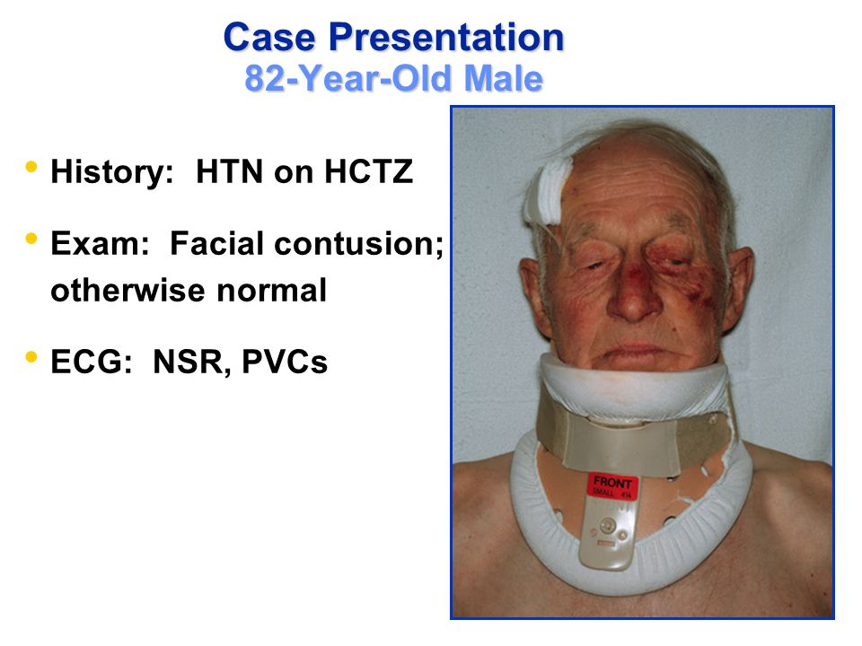 Case Presentation 82-Year-Old Male What to do.