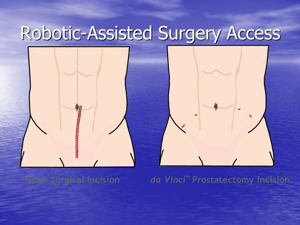 Robotic-Assisted Surgery Access Open Surgical Incision da Vinci ™ Prostatectomy Incision