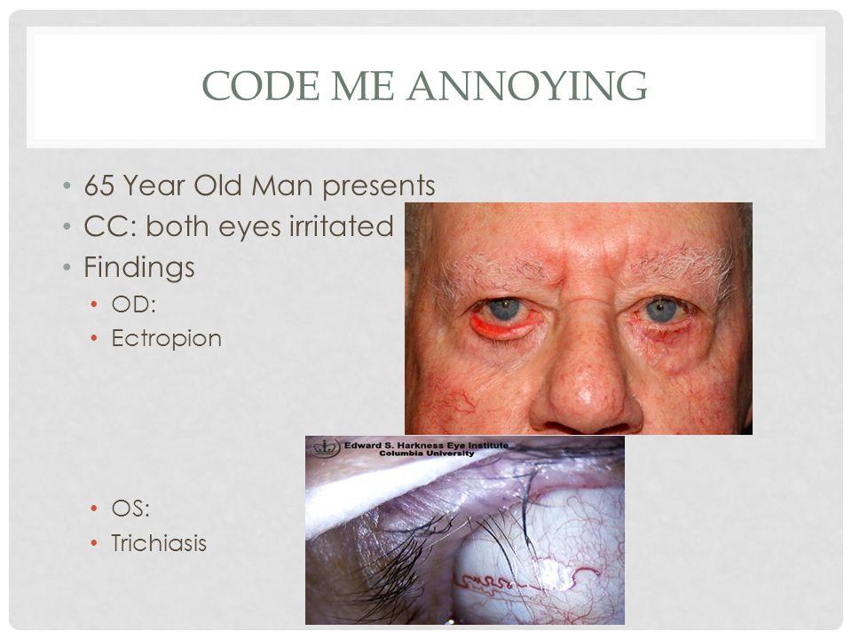 CODE ME ANNOYING 65 Year Old Man presents CC: both eyes irritated Findings OD: Ectropion OS: Trichiasis