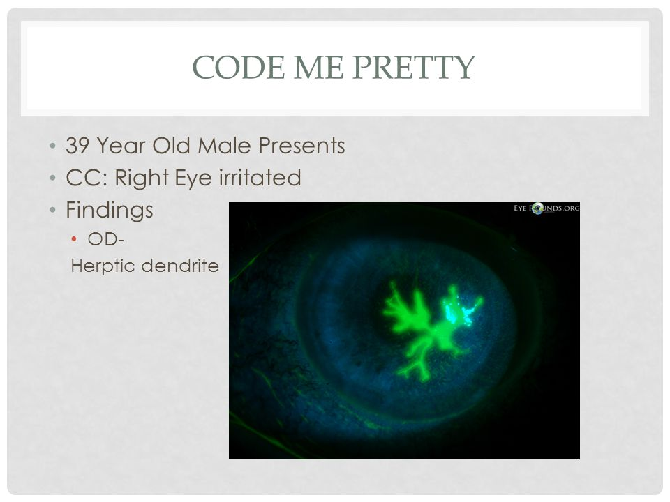 CODE ME PRETTY 39 Year Old Male Presents CC: Right Eye irritated Findings OD- Herptic dendrite