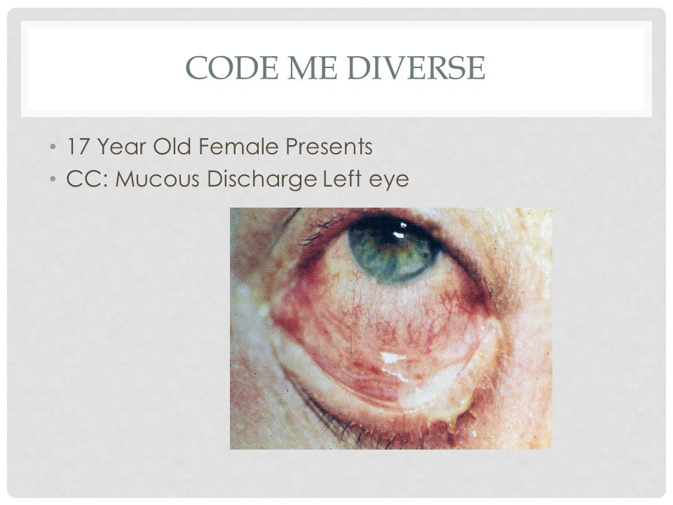 CODE ME DIVERSE 17 Year Old Female Presents CC: Mucous Discharge Left eye