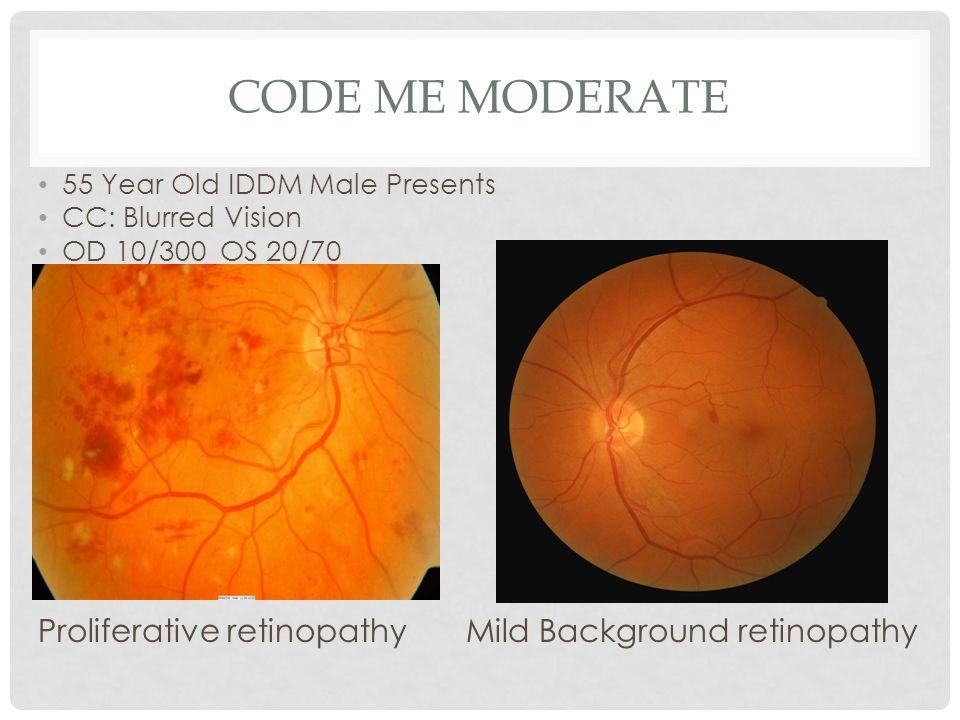 CODE ME MODERATE 55 Year Old IDDM Male Presents CC: Blurred Vision OD 10/300 OS 20/70 Proliferative retinopathy Mild Background retinopathy