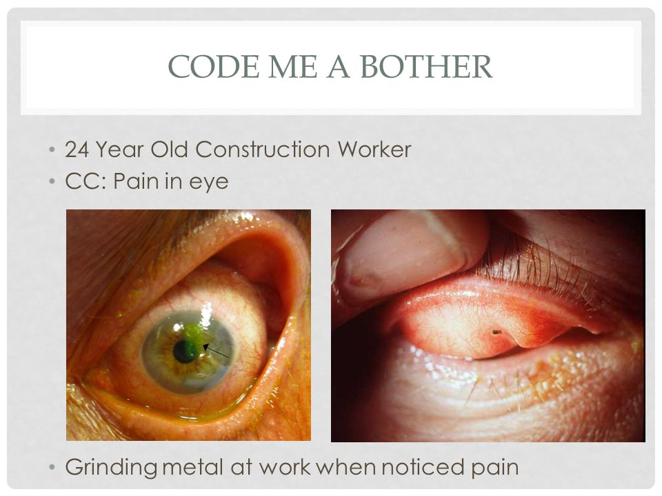 CODE ME A BOTHER 24 Year Old Construction Worker CC: Pain in eye Grinding metal at work when noticed pain
