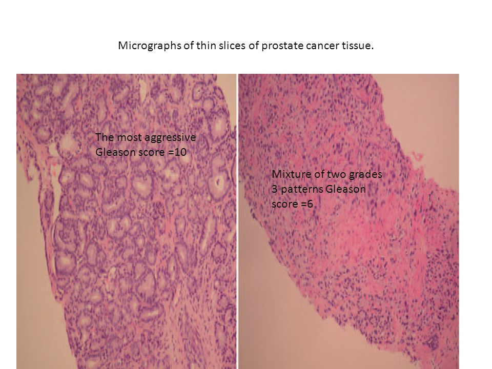 Micrographs of thin slices of prostate cancer tissue.