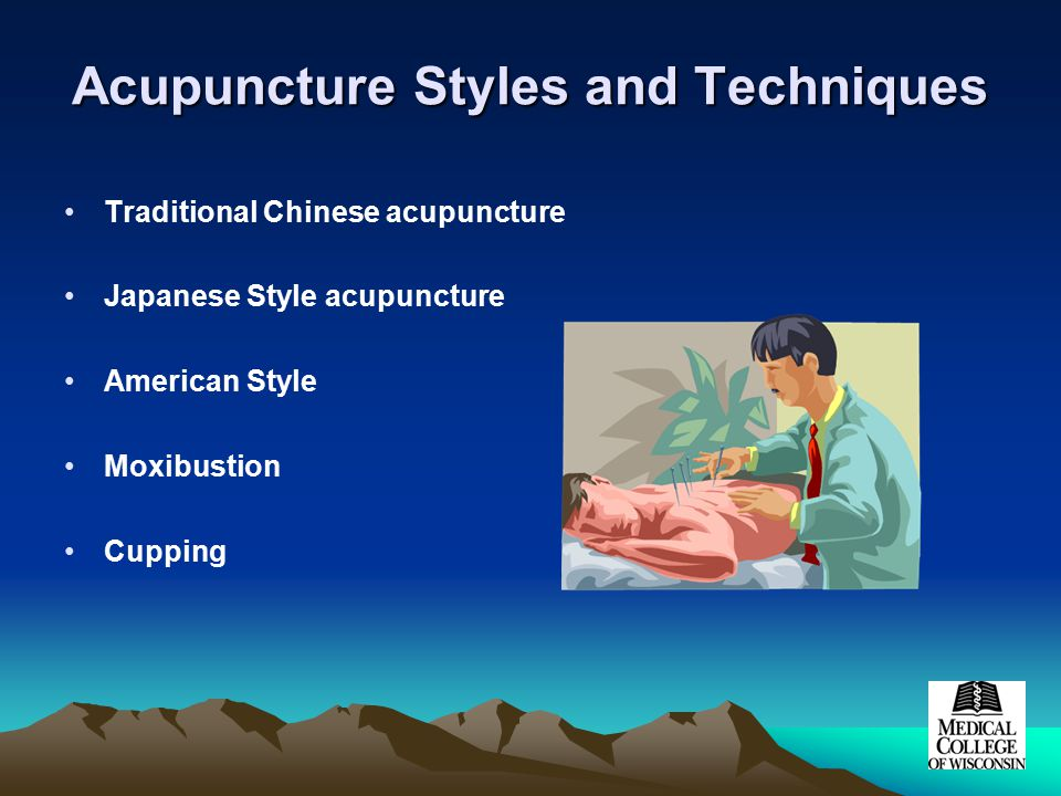 Acupuncture Styles and Techniques Traditional Chinese acupuncture Japanese Style acupuncture American Style Moxibustion Cupping