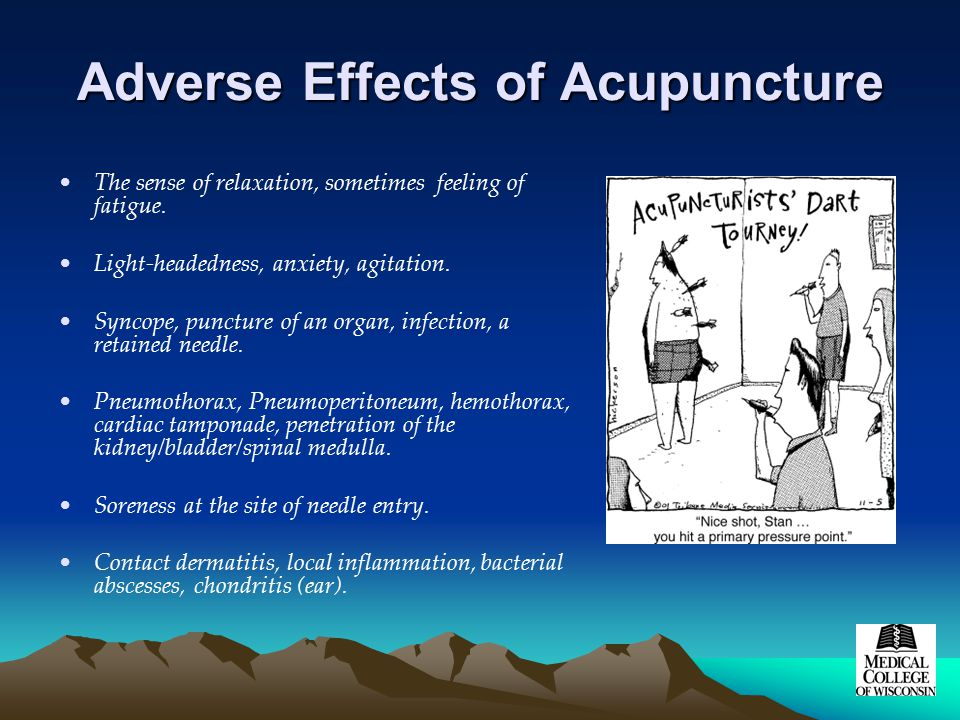 Adverse Effects of Acupuncture The sense of relaxation, sometimes feeling of fatigue.